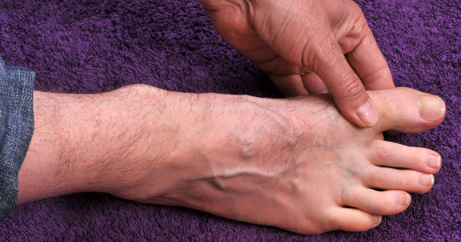 does gout affect your toes high levels of uric acid in the blood may lead to gout symptoms top of foot pain