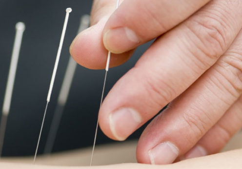 difference between dry needling and acupuncture
